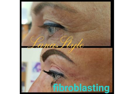 Non-surgical blepharoplasty 1