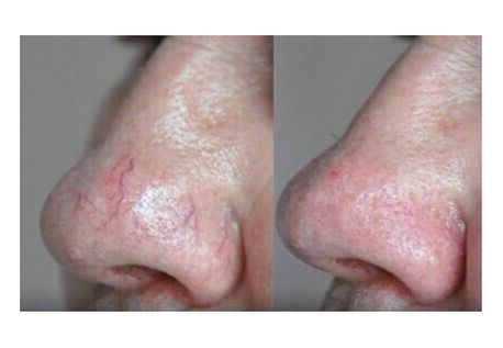 Laser removal of capillaries