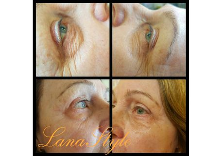 Non-surgical blepharoplasty 2